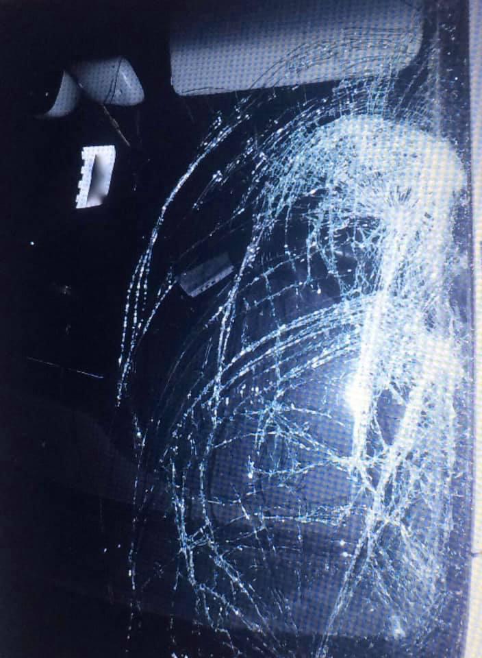 Ужгород. Неуважність водія легковика відправила підлітка на лікарняне ліжко