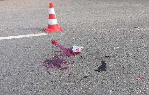 На пешеходном переходе в Ужгороде авто сбило мужчину