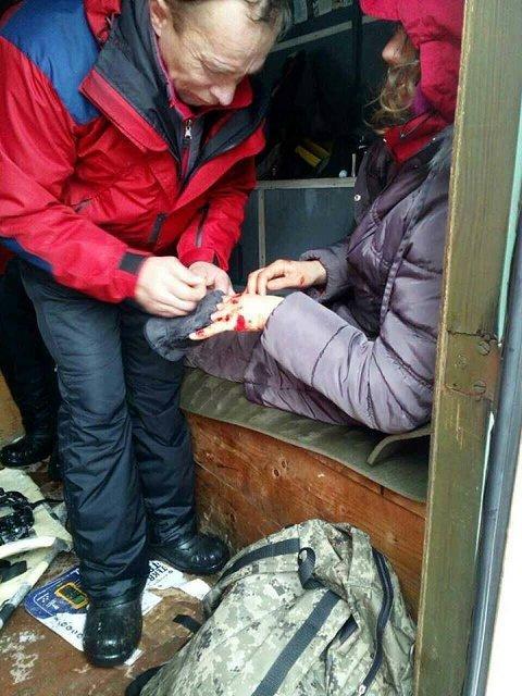 На Закарпатье серьезно травмировалась туристка с Киева