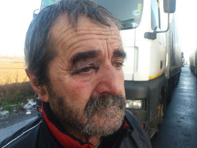 В результате мордобоя на украинско-румынской границе в Закарпатье пострадали дальнобойщики из Сербии
