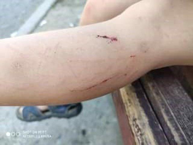 Ремонты по-Андріївськи в областном центре Закарпатья - это издевательство над ужгородцами