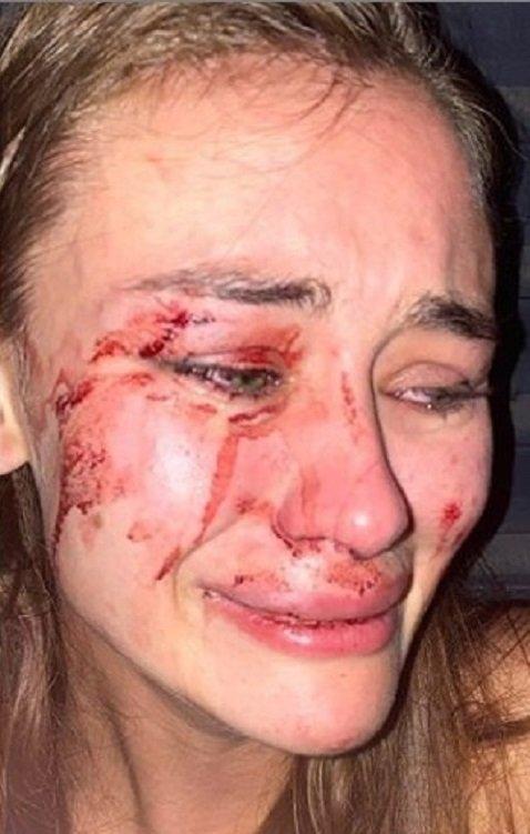 Известную украинскую модель Дарью Кирилюк избила охрана отеля в Турции