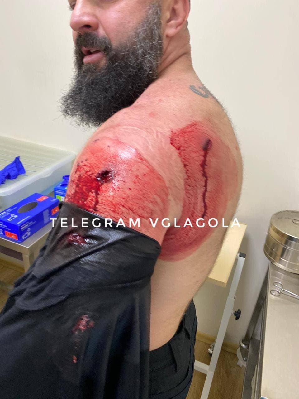 Подозреваемых в нападении на «авторитета» в Мукачево суд признал невиновными (ФОТО)