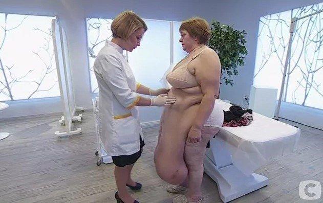 """Хирурги со стажем были в шоке от увиденного на программе """"Я соромлюсь свого тіла"""""""
