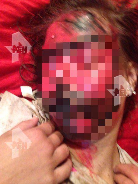 Одноклассники решили воспользоваться беспомощностью девушки и надругались над не