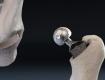 Закарпаття. Жителям Мукачево пропонують безкоштовні операції із заміни колінних та кульшових суглобів