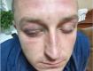 На Сумщине инкассатор заявил об пытках полицией