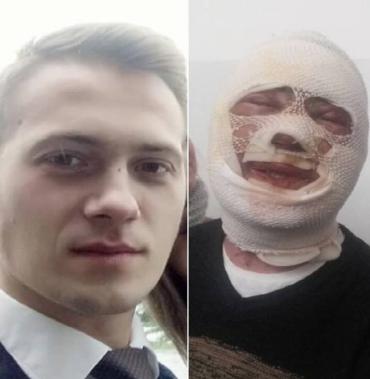 Постраждалий від «хімічного» нападу Михайло Грабар