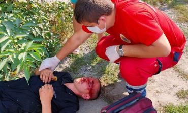 Лицо всё в крови: В Ужгороде охранники избили человека с особой жестокостью