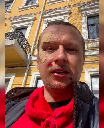 3-гривневого псевдожурналиста Романа Винтонива побили по морде лица в центре Киева