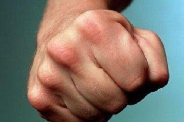 """В Ужгороде группа неизвестных избила ведущего местного радио """"Тиса FM"""""""
