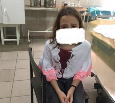 Жертва школьной травли в Закарпатье панически боится ходить в школу