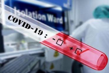 Официально. За минувшие сутки коронавирус выявили в новых 77 жителей Закарпатья