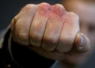 В Мукачево полицейского избили вне службы