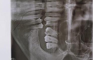 """Перелом челюсти и ушибы: На Закарпатье ромы напали на человека прямо в """"АТБ"""""""