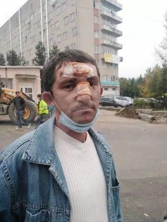 В Ужгороде нужны свидетели дикого поступка после которого человека пришлось оперировать