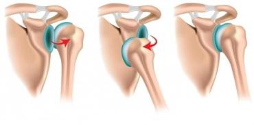 Вывих плечевого сустава связан с большими нагрузками