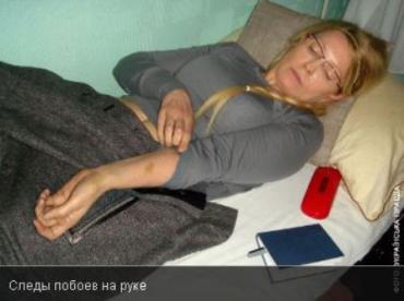 Бывший омбудсмен сделала фото побитой Тимошенко