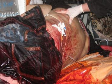 Пострадавший, получив ранение в причинное место, истек кровью