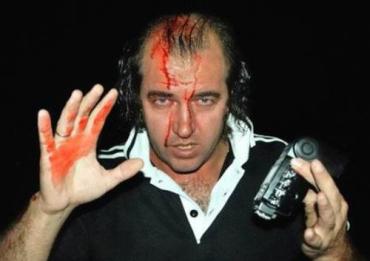 "Фотограф УНИАН пострадал во время захвата завода ""Таврия"""