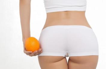Як зменшити прояви целюліту і прибрати зайві сантиметри зі стегон