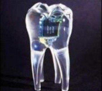 Мобильный телефон в зубе