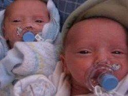 В Великобритании родились редкие близняшки