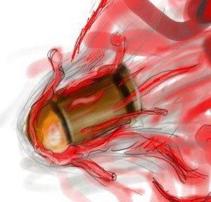 Пуля прошла насквозь и женщине просто зашили рану
