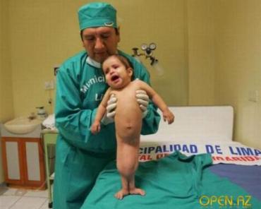 Врачи подарили новую жизнь девочке-русалке Милагрос Серрон