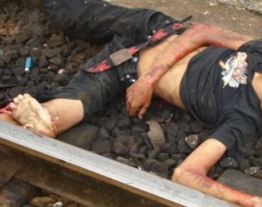 """""""Черные"""" трансплантологи убивают людей в Закарпатье"""