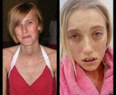 Саманта Миллард не болела свиным гриппом, но ослепла