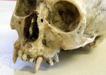 В могилах обнаружены изуродованные человеческие скелеты