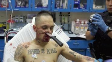 В Хустском районе мужик отправил нападающего в реанимацию