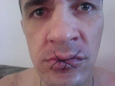 В Ужгородском СИЗО милиционеры жестоко издеваются над узниками