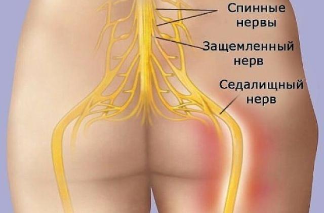 Мазь от боли в суставах шеи