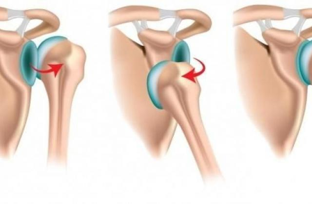 Задний вывих плечевого сустава микроразрыв связок плечевого сустава